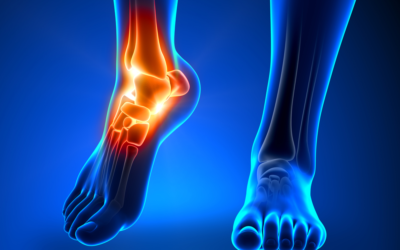 13 Types of Foot and Ankle Injuries That Shouldn't Be Ignored
